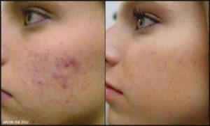 akne na licu