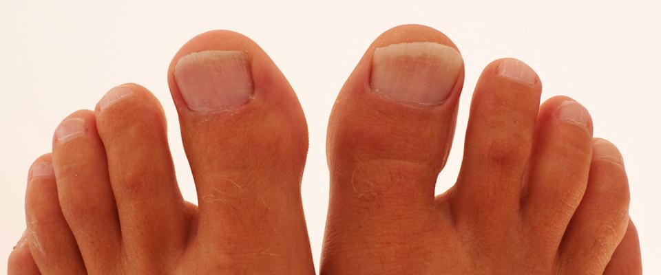 gljivice na noktima nogu