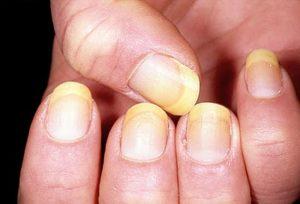 gljivice na noktima ruku