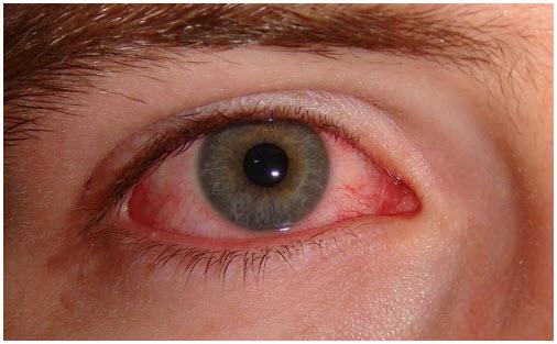 alergijski konjuktivitis simptomi