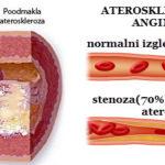 ateroskleroza simptomi mozdanog udara