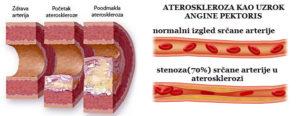ateroskleroza simptomi