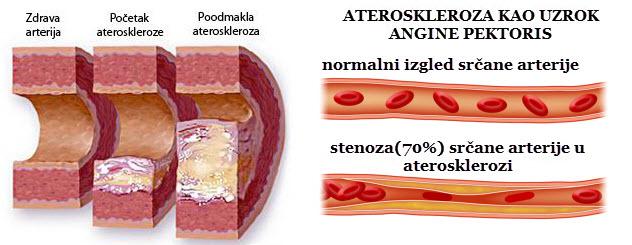 Ateroskleroza simptomi oboljenja i prirodno lečenje