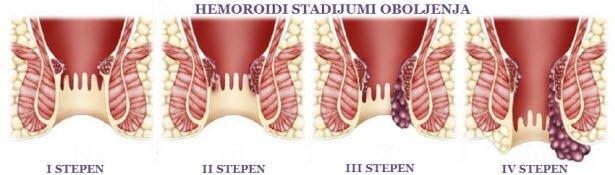 hemoroidi simptomi