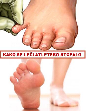 atletsko stopalo lecenje