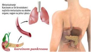 rak pankreasa simptomi
