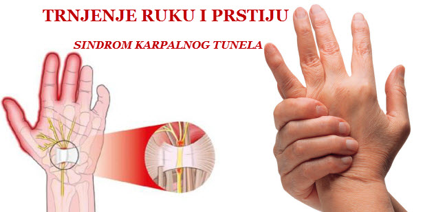 trnjenje ruku sindrom karpalnog kanala