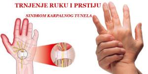 trnjenje ruku sindrom karpalnog tunela