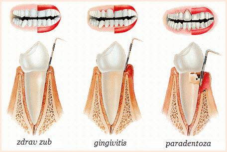 upala desni simptomi | uzrok | lecenje | gingivitis