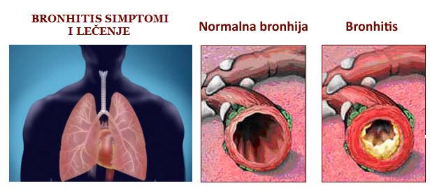 Bronhitis simptomi kod odraslih i dece – lečenje