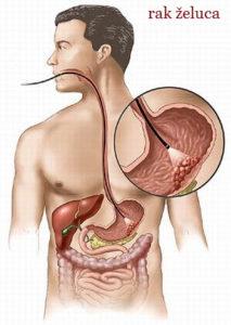 rak zeluca simptomi