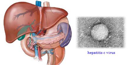hepatitis c simptomi | ishrana | lecenje