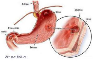 cir_na_zelucu_simptomi