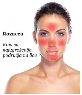 kako ukloniti crvenilo na licu