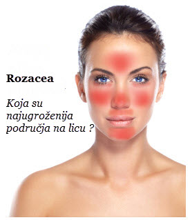 rozacea na licu simptomi | lecenje | crvenilo na licu