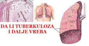 tuberkuloza simptomi
