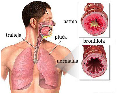 bronhijalna astma kako se manifestuju simptomi
