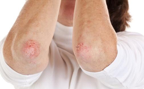Psorijaza simptomi i lečenje prirodnim putem