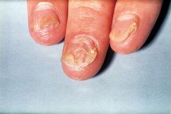 psorijaza na noktima