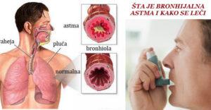 sta_je_bronhijalna_astma