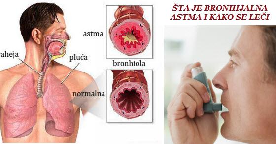 Bronhijalna astma simptomi i prirodno lečenje