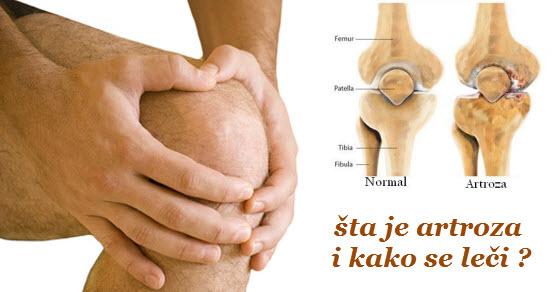 artroza kolena simptomi