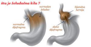 hijatalna hernija simptomi