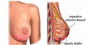 mastitis simptomi