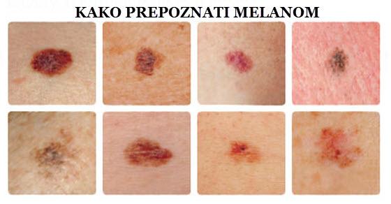 melanom simptomi