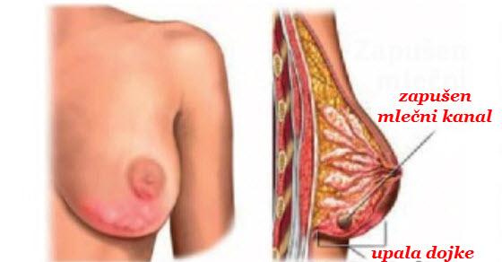 upala dojke simptomi