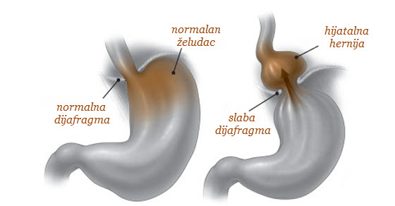 zeludacna kila simptomi