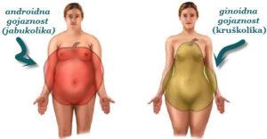 gojaznost u predelu stomaka