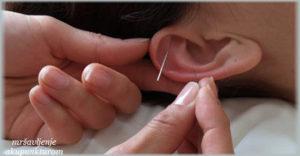 mršavljenje akupunkturom