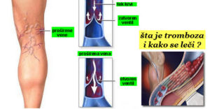 tromboza noge simptomi