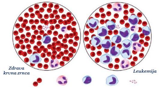 akutna leukemija simptomi kod odraslih