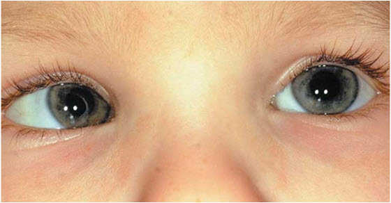 strabizam kod dece | lečenje | simptomi | operacija | razrokost