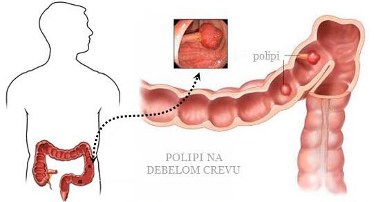 polipi na debelom crevu simptomi
