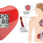 arterijska hipertenzija simptomi | ishrana | lečenje