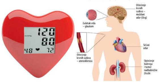 Arterijska hipertenzija simptomi i prirodno lečenje