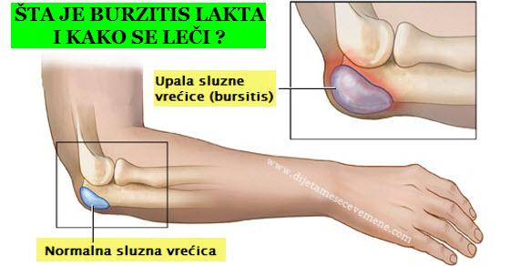 burzitis lakta | kolena | ramena | kuka