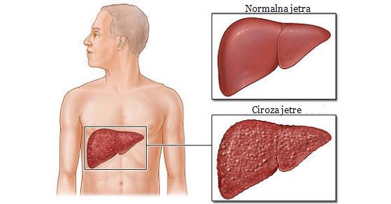 Alkoholna ciroza jetre simptomi i lečenje