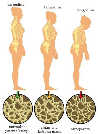 osteoporoza kostiju simptomi