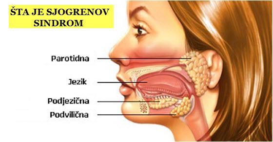 pljuvačne žlezde bolesti