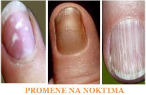 promene na noktima ruku