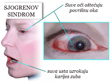 sjogrenov sindrom simptomi