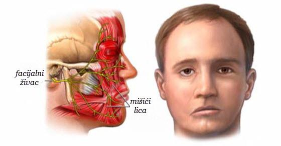 Pareza facijalis simptomi upale živca na licu