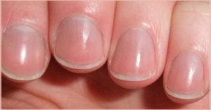zdravi nokti na rukama