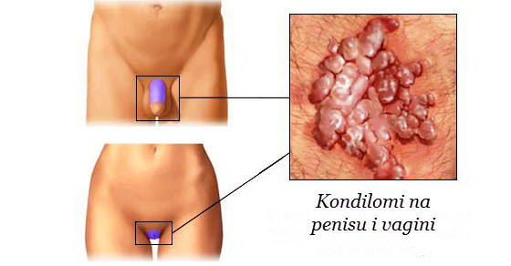 Hpv virus simptomi zene - Hpv virus lijecenje kod zena