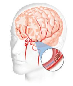 moždani udar simptomi