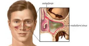 prirodni lek za sinuse